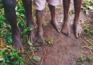 Chapter 11. Bipedalism: walk like a man, you son of an ape